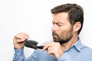8 Main causes of hair loss in men.